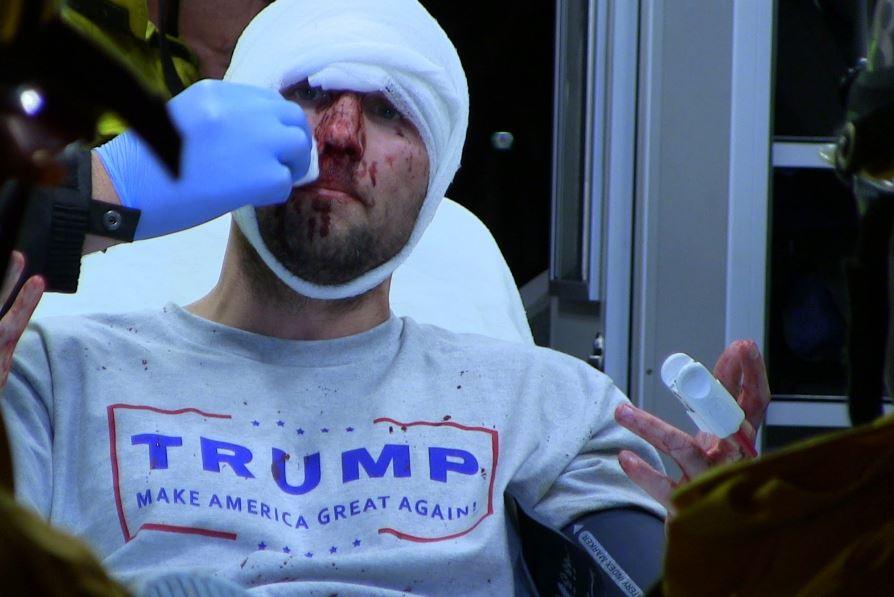 Zmlácený příznivec Donalda Trumpa