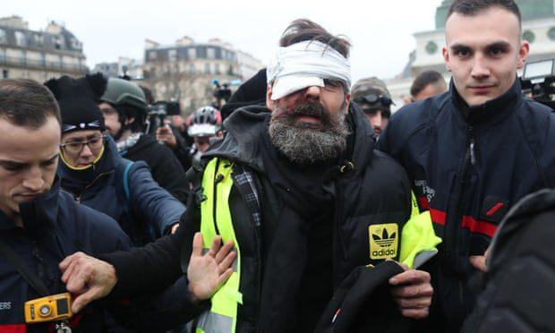 Francouzská policie používá proti žlutým vestám granáty s vysokým obsahem TNT